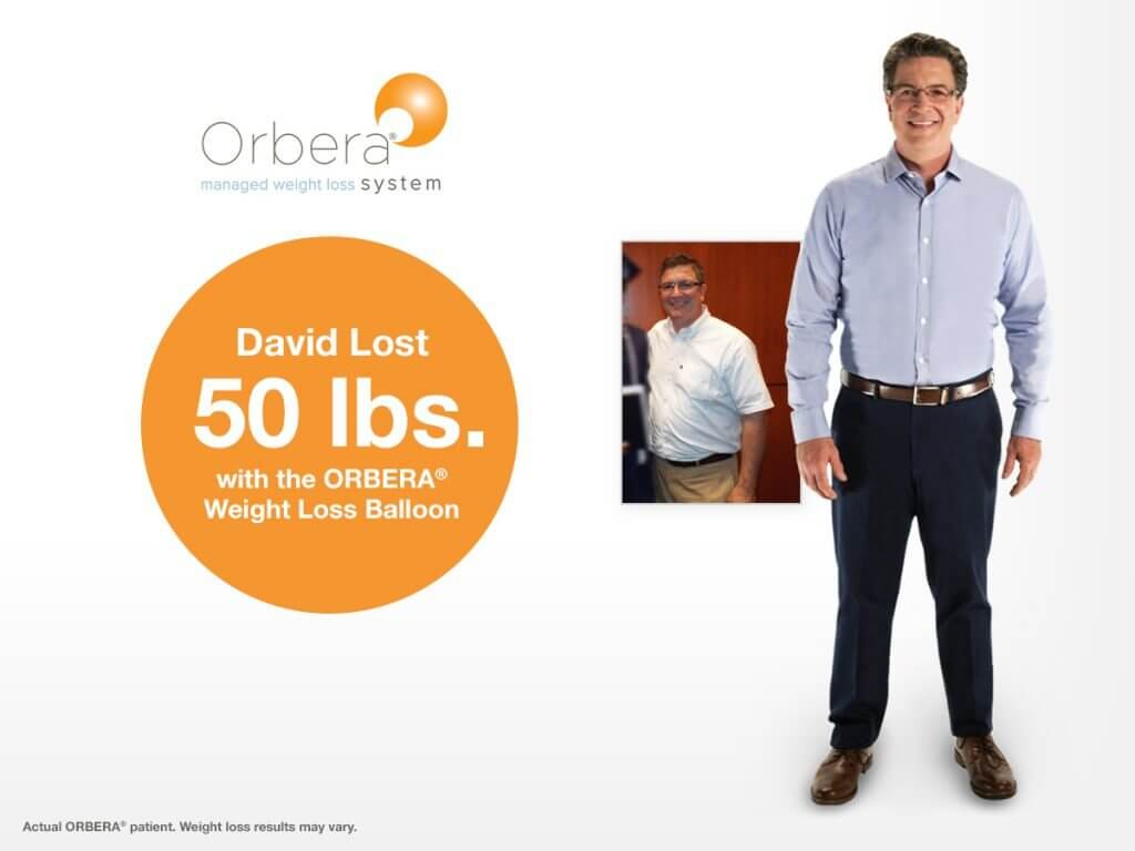 , Orbera Gastric Balloon for Weight Loss